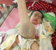 Dirut RSUD Arifin Achmad Klaim Tak Minta Biaya Dedek Bayi Pengidap Omfalokel