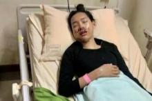 Jadi Korban Jambret, Mahasiswi Relawan PDIP Ini Alami Patah Rahang
