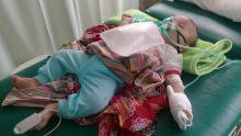 Ini Penjelasan Ayah Dedek Bayi 4 Bulan yang Meninggal karena ISPA di Sumsel