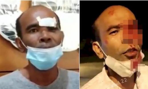 Terbongar, Eks Anggota DPRD yang Ngaku Matanya Ditusuk Petugas PPKM, Ternyata Cuma Pelipisnya yang Kena