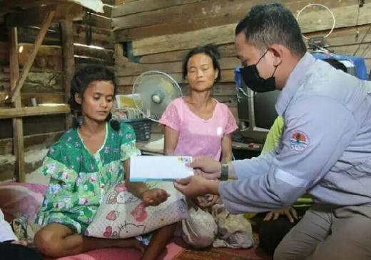 Miris, Saat Bantu Orang Tua Bikin Batu Bata, Siswi SD di Pekanbaru Ini Kehilangan Tangannya