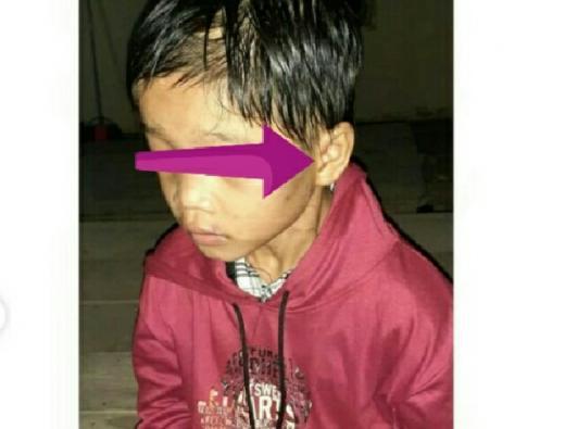 Sempat Dikira Hoaks, Kasus Anak yang Dibuang Ibu di Jalanan di Riau Sudah Ditangani Polisi